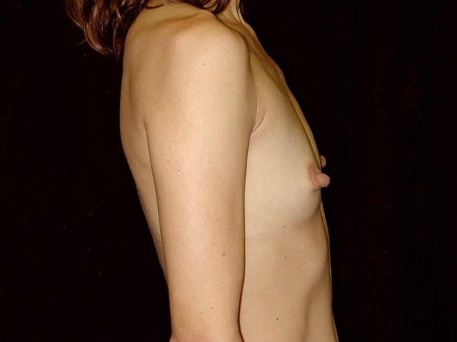 Breast Augmentation Gallery - Patient 39245749 - Image 7