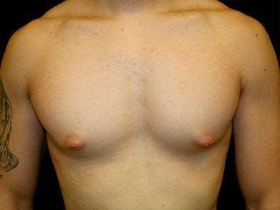 Gynecomastia Gallery - Patient 39245752 - Image 1