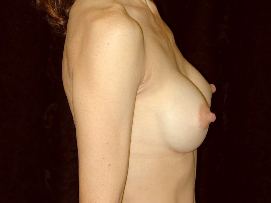 Breast Augmentation Gallery - Patient 39245749 - Image 8