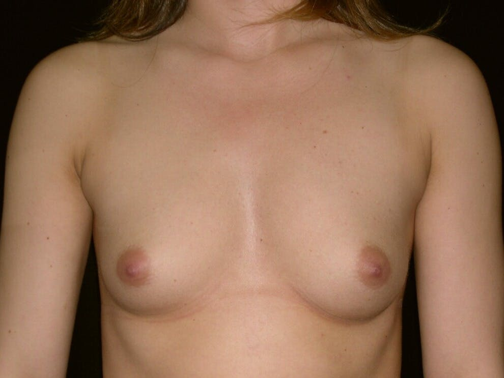 Breast Augmentation Gallery - Patient 39245756 - Image 1