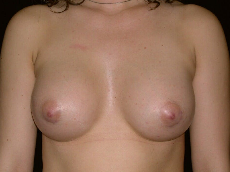 Breast Augmentation Gallery - Patient 39245756 - Image 2