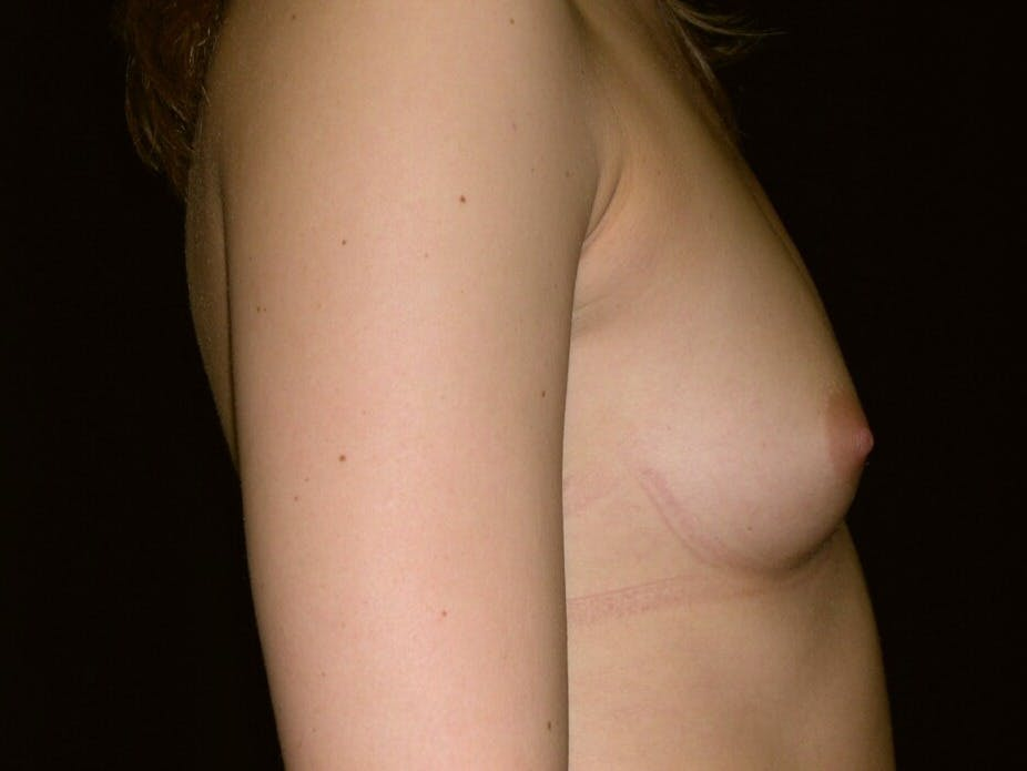 Breast Augmentation Gallery - Patient 39245756 - Image 3