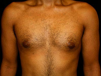 Gynecomastia Gallery - Patient 39245755 - Image 1
