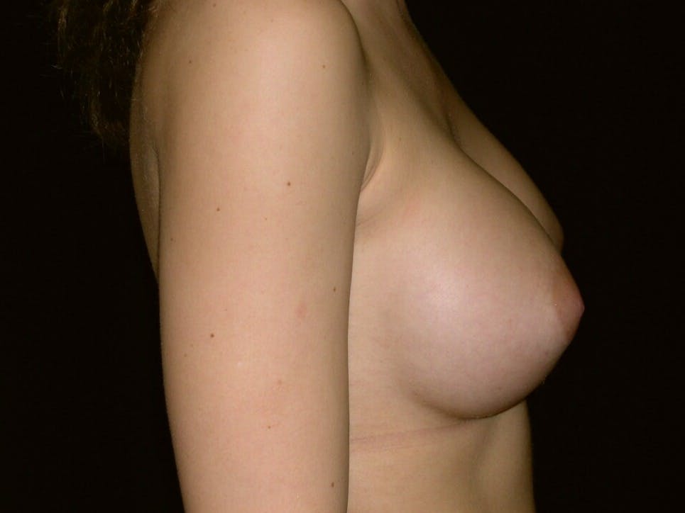 Breast Augmentation Gallery - Patient 39245756 - Image 4