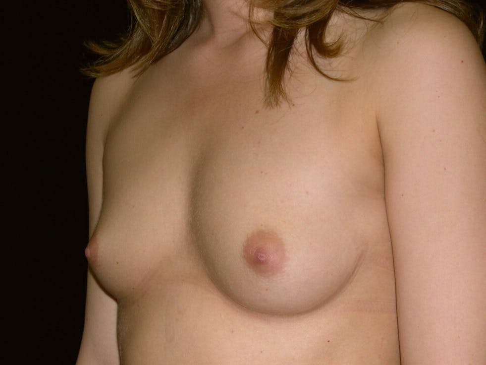 Breast Augmentation Gallery - Patient 39245756 - Image 5