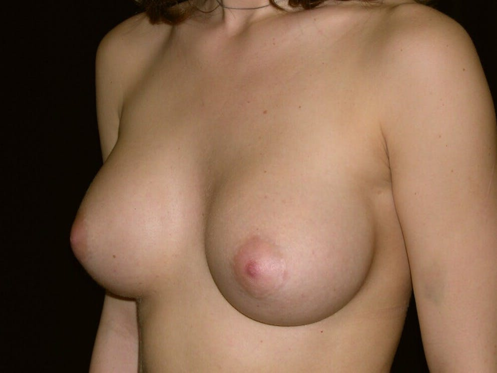 Breast Augmentation Gallery - Patient 39245756 - Image 6