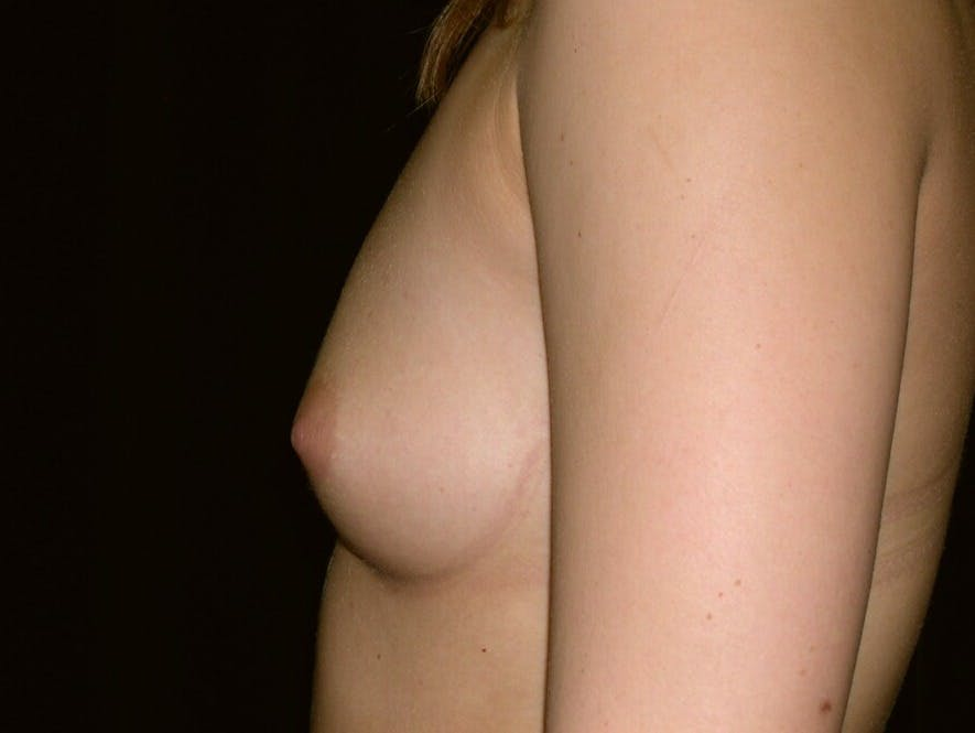 Breast Augmentation Gallery - Patient 39245756 - Image 7