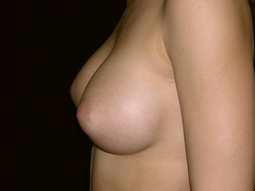 Breast Augmentation Gallery - Patient 39245756 - Image 8