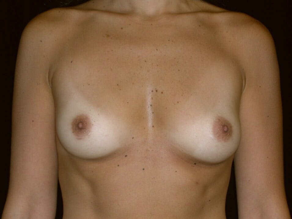 Breast Augmentation Gallery - Patient 39245768 - Image 1