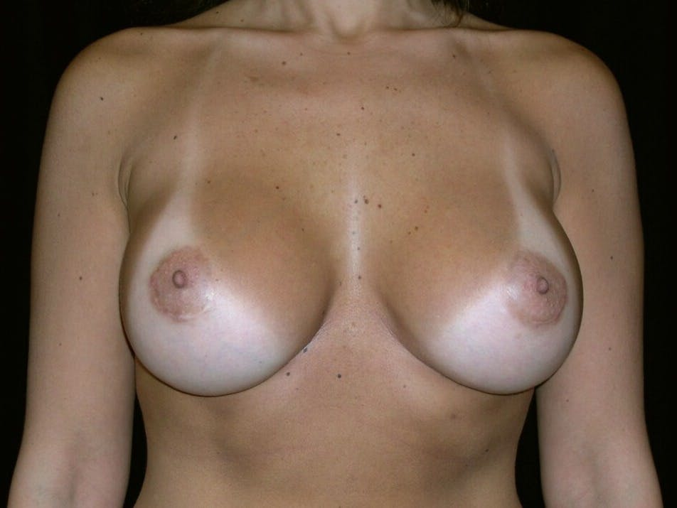 Breast Augmentation Gallery - Patient 39245768 - Image 2