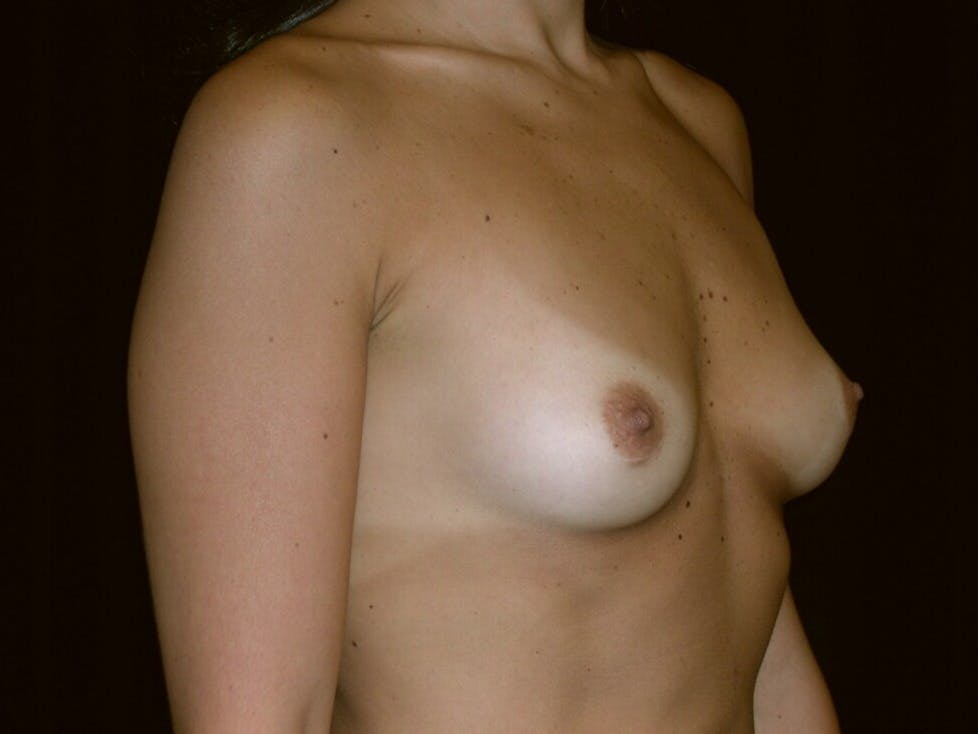 Breast Augmentation Gallery - Patient 39245768 - Image 3