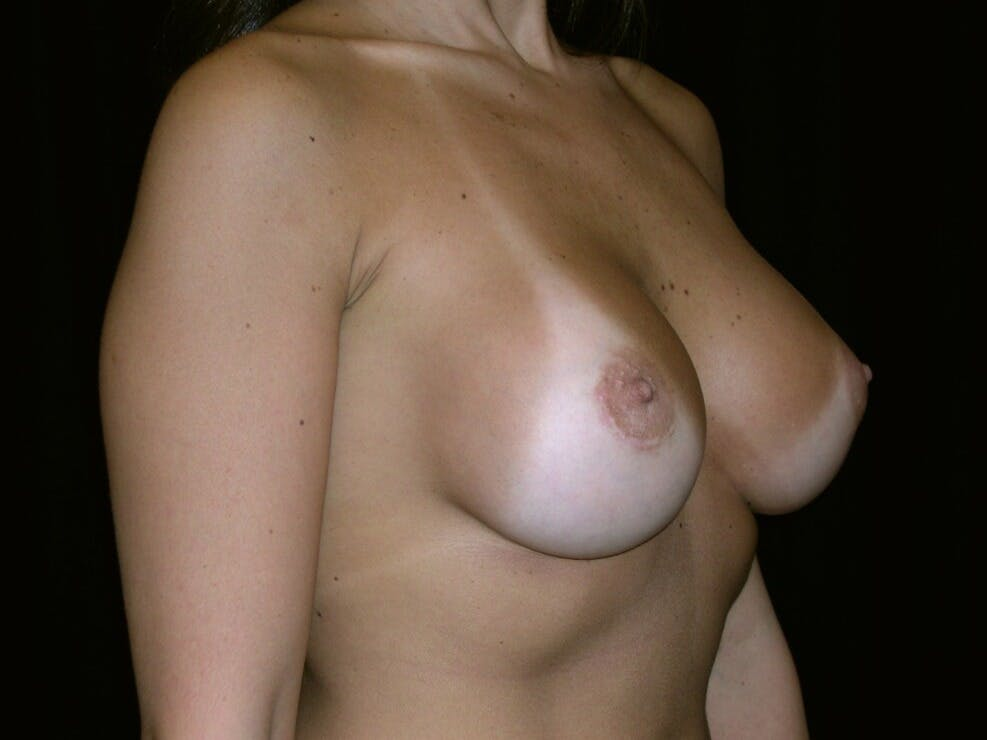 Breast Augmentation Gallery - Patient 39245768 - Image 4