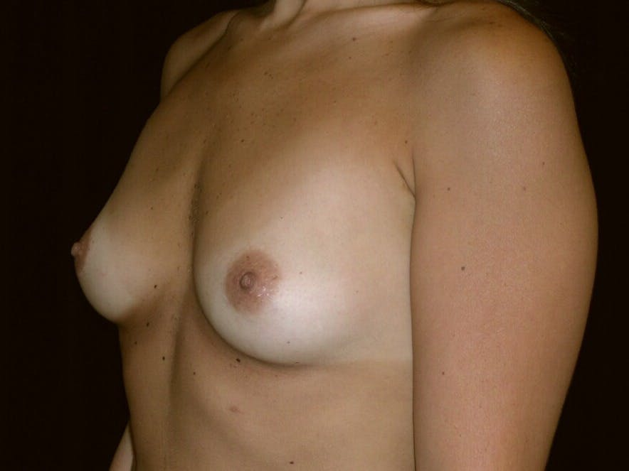 Breast Augmentation Gallery - Patient 39245768 - Image 5