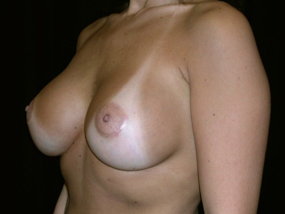 Breast Augmentation Gallery - Patient 39245768 - Image 6