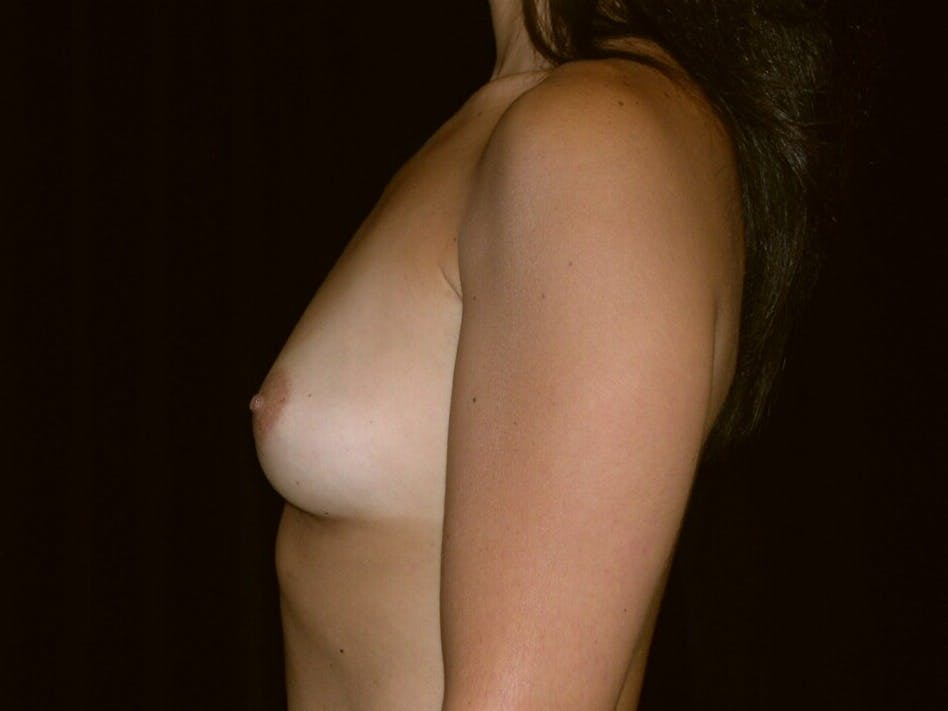 Breast Augmentation Gallery - Patient 39245768 - Image 7