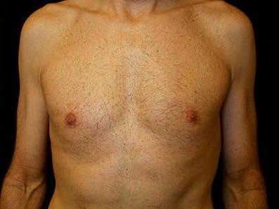 Gynecomastia Gallery - Patient 39245769 - Image 2