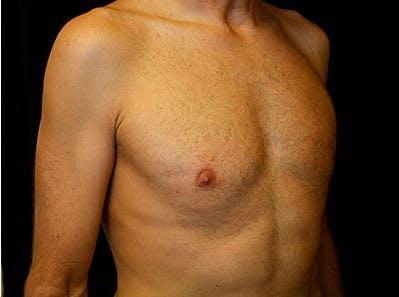 Gynecomastia Gallery - Patient 39245769 - Image 4