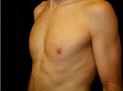 Gynecomastia Gallery - Patient 39245769 - Image 6