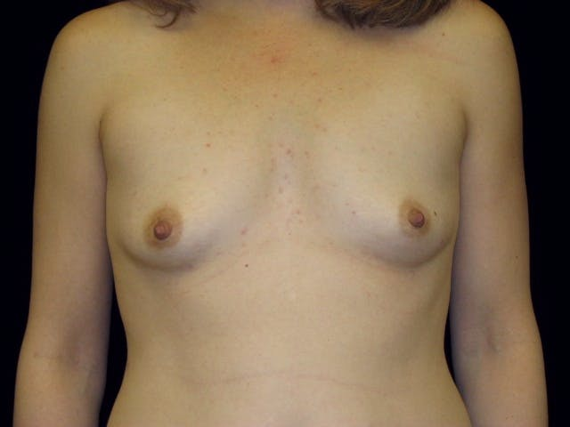 Breast Augmentation Gallery - Patient 39245773 - Image 1