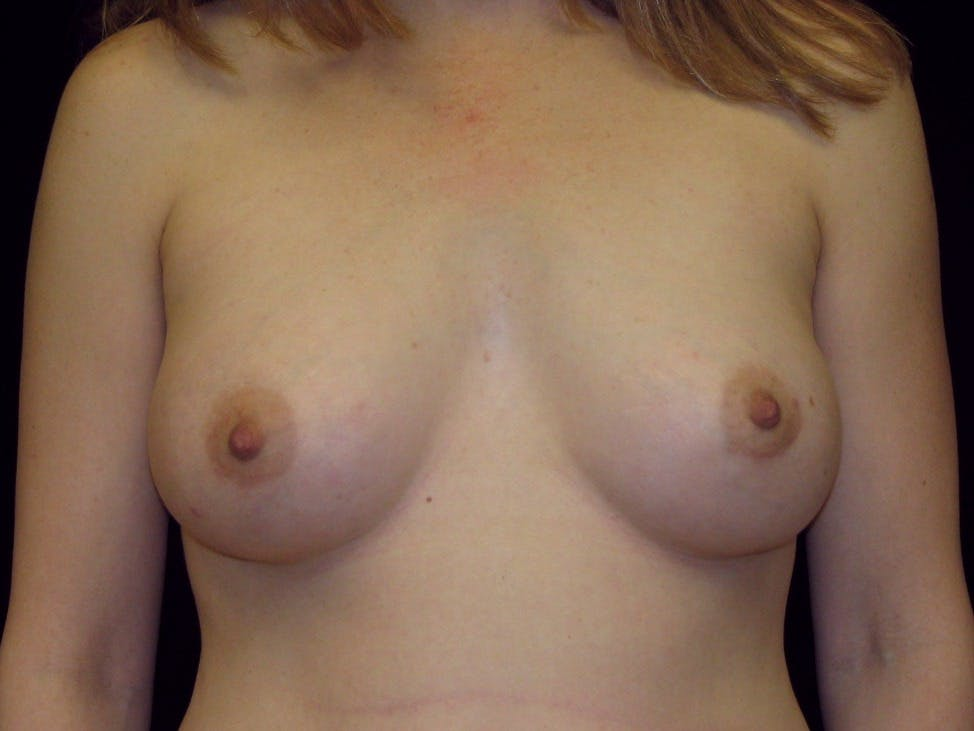 Breast Augmentation Gallery - Patient 39245773 - Image 2