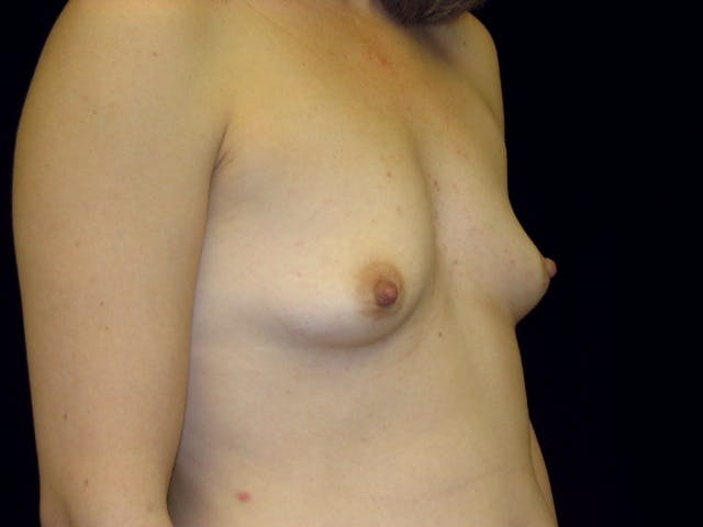 Breast Augmentation Gallery - Patient 39245773 - Image 3