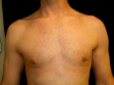 Gynecomastia Gallery - Patient 39245771 - Image 2
