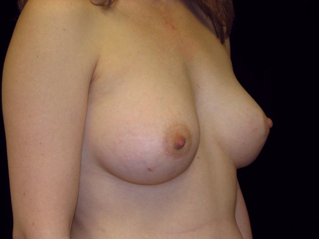 Breast Augmentation Gallery - Patient 39245773 - Image 4