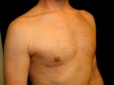 Gynecomastia Gallery - Patient 39245771 - Image 4