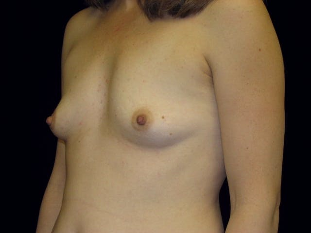 Breast Augmentation Gallery - Patient 39245773 - Image 5