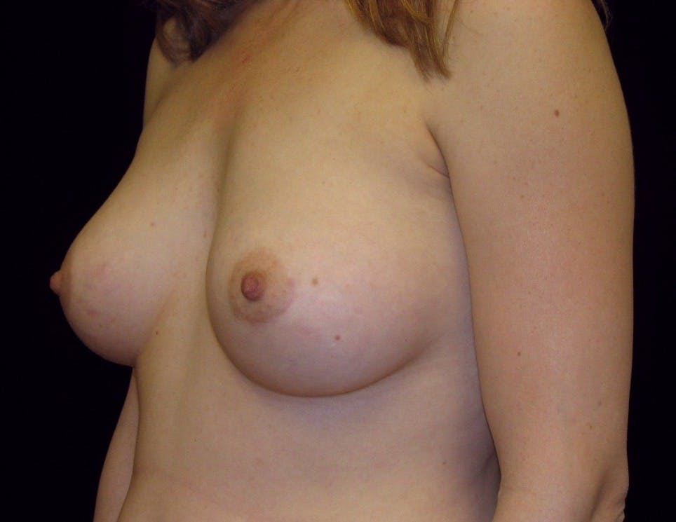 Breast Augmentation Gallery - Patient 39245773 - Image 6