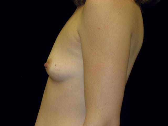 Breast Augmentation Gallery - Patient 39245773 - Image 7