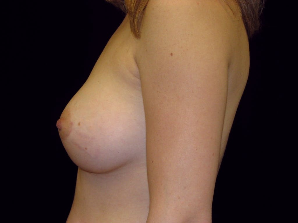 Breast Augmentation Gallery - Patient 39245773 - Image 8