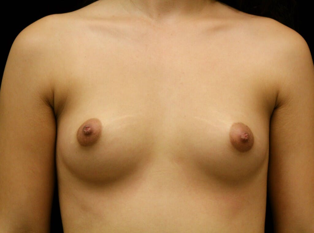 Breast Augmentation Gallery - Patient 39245912 - Image 1