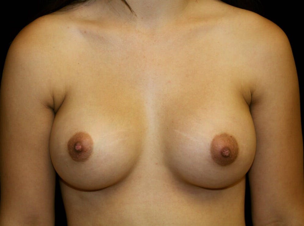 Breast Augmentation Gallery - Patient 39245912 - Image 2