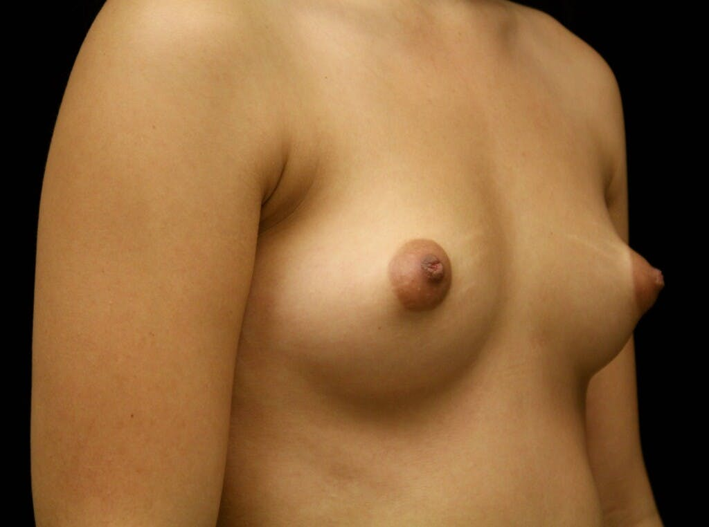 Breast Augmentation Gallery - Patient 39245912 - Image 3