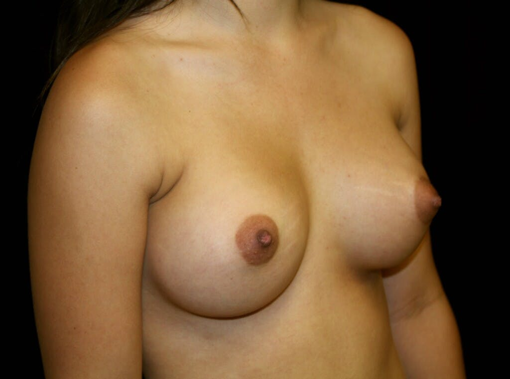 Breast Augmentation Gallery - Patient 39245912 - Image 4