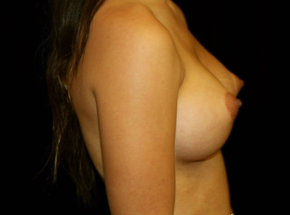 Breast Augmentation Gallery - Patient 39245912 - Image 6