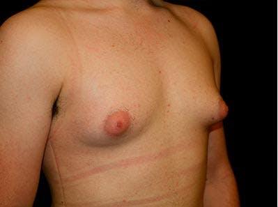 Gynecomastia Gallery - Patient 39245911 - Image 3