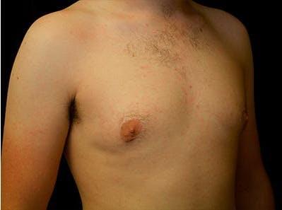 Gynecomastia Gallery - Patient 39245911 - Image 4
