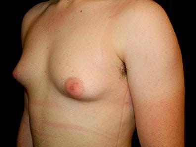 Gynecomastia Gallery - Patient 39245911 - Image 5