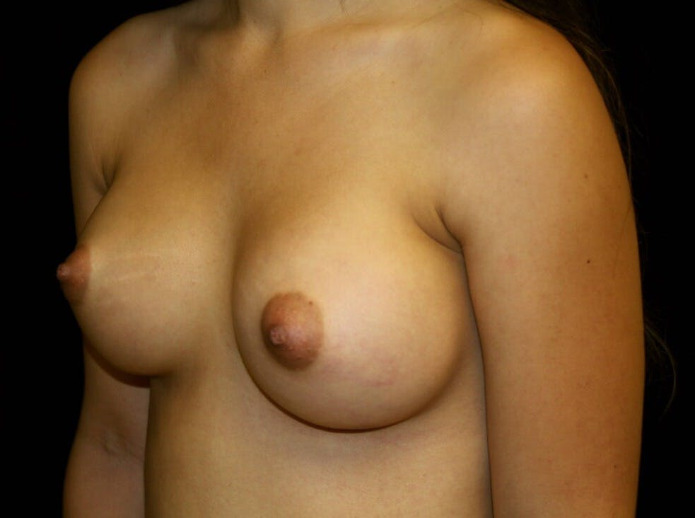 Breast Augmentation Gallery - Patient 39245912 - Image 8