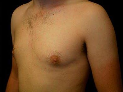 Gynecomastia Gallery - Patient 39245911 - Image 6