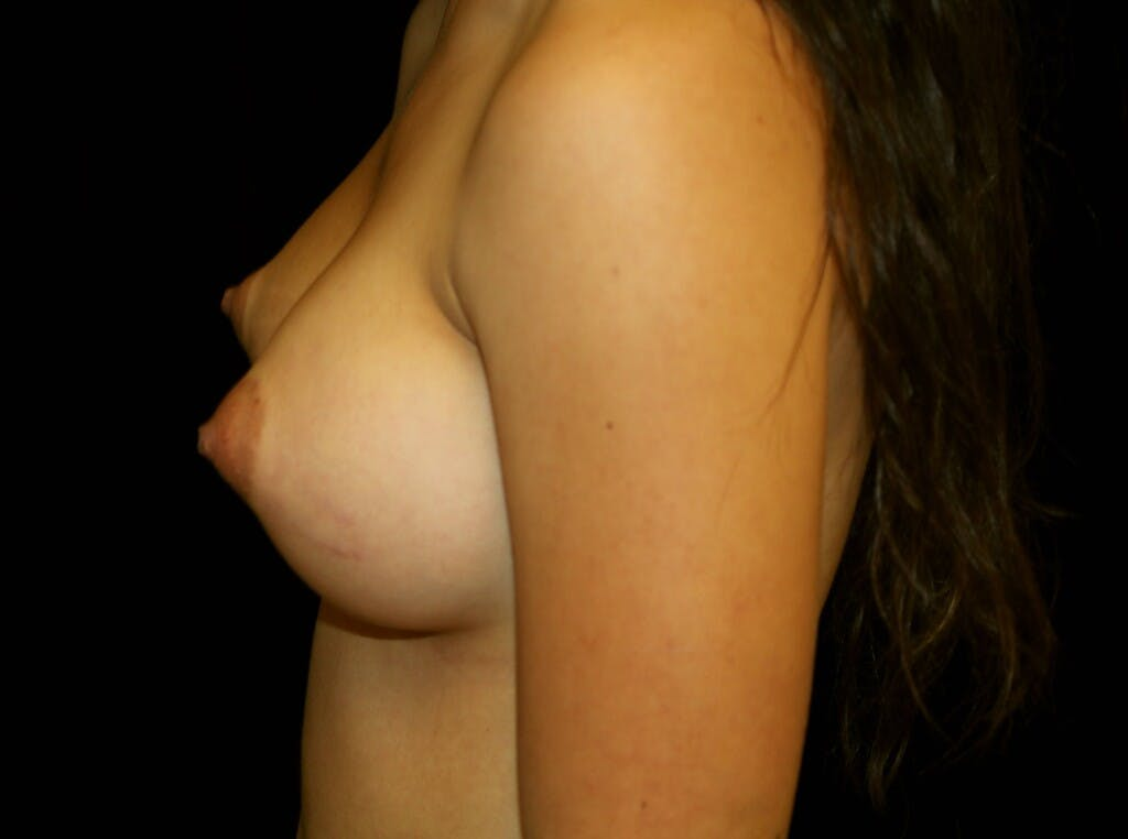 Breast Augmentation Gallery - Patient 39245912 - Image 10