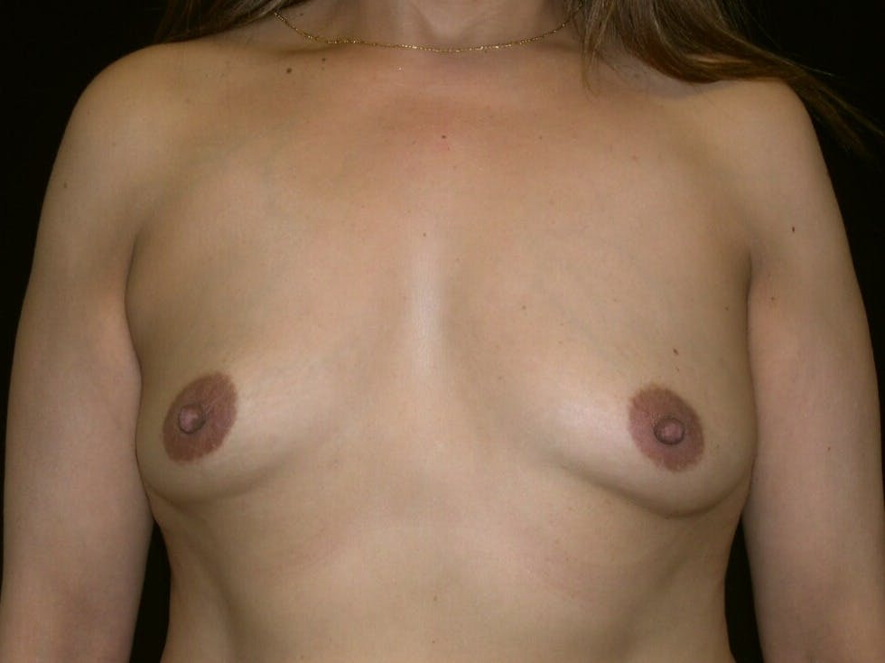 Breast Augmentation Gallery - Patient 39246047 - Image 1