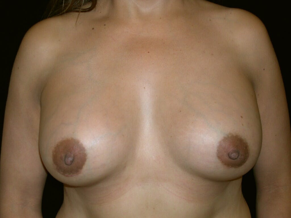 Breast Augmentation Gallery - Patient 39246047 - Image 2