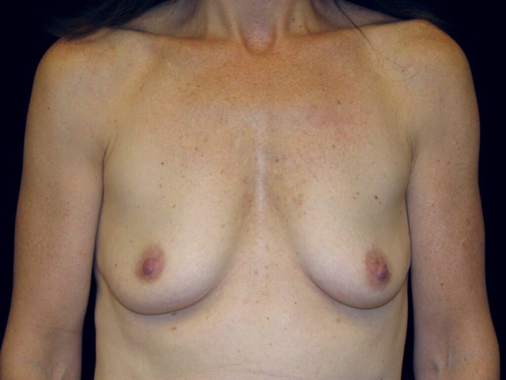 Breast Augmentation Gallery - Patient 39246051 - Image 1