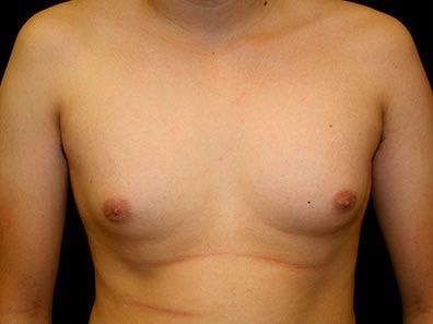 Gynecomastia Gallery - Patient 39246050 - Image 1