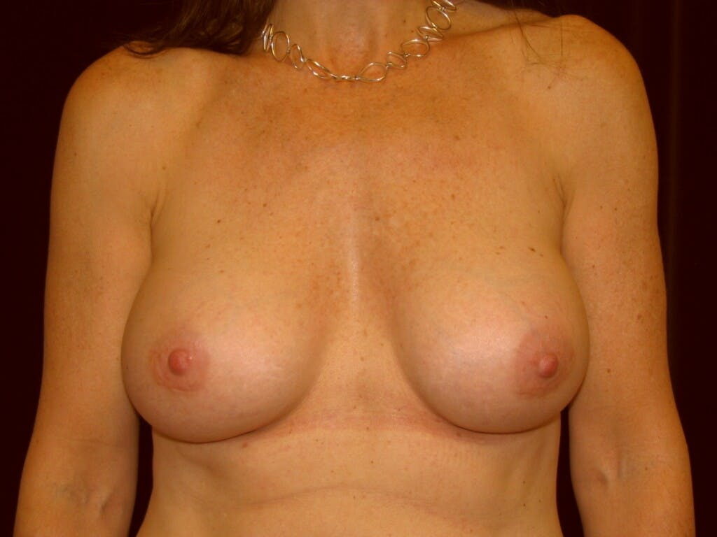 Breast Augmentation Gallery - Patient 39246051 - Image 2