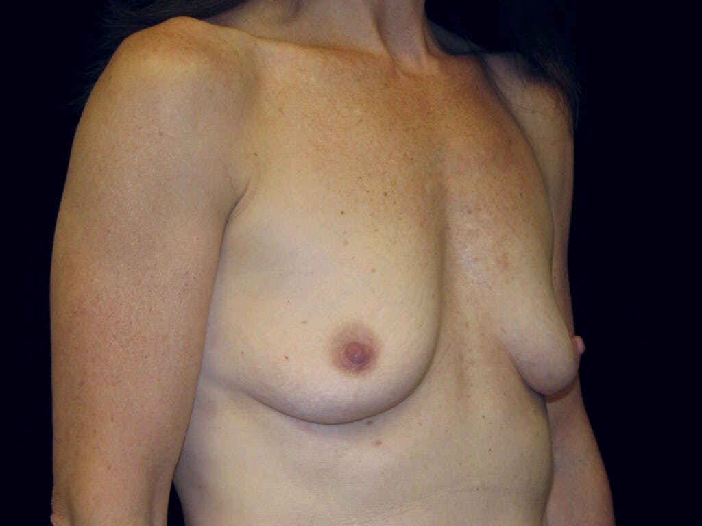 Breast Augmentation Gallery - Patient 39246051 - Image 3