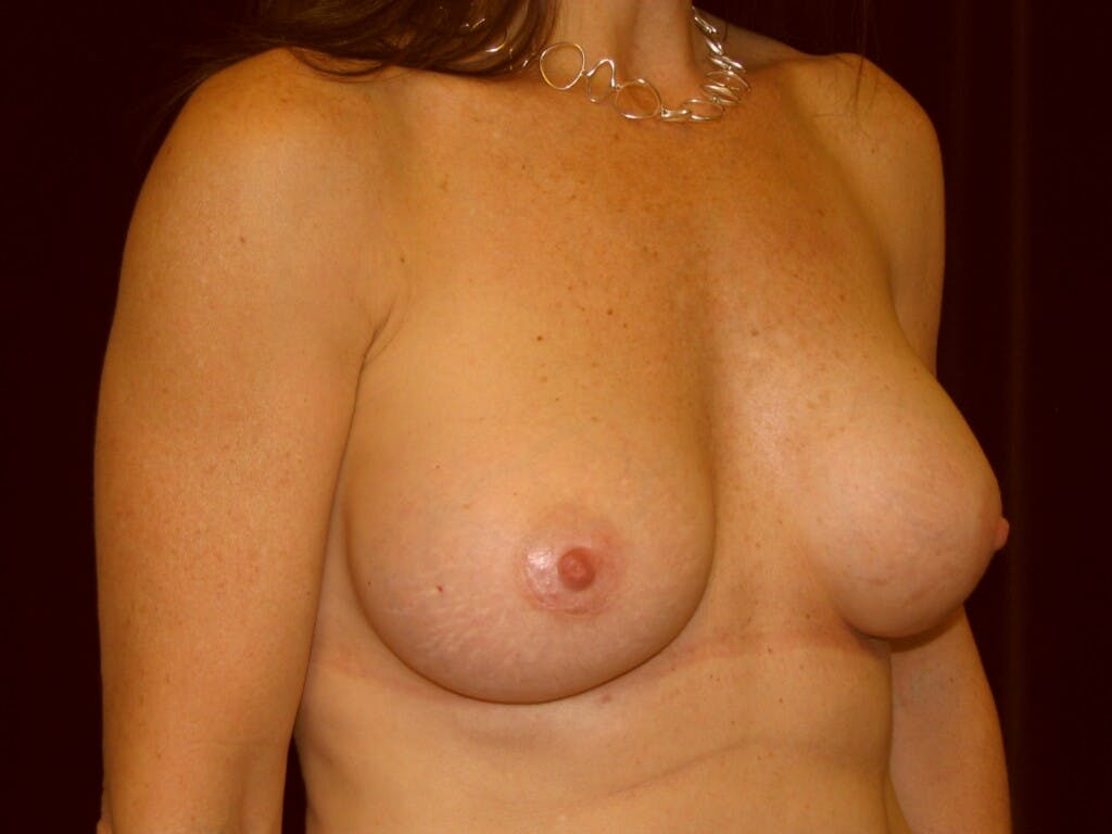 Breast Augmentation Gallery - Patient 39246051 - Image 4